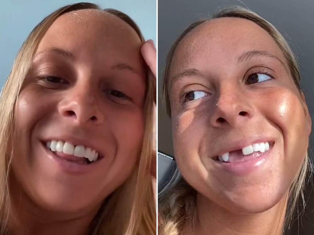 devojka zubna proteza