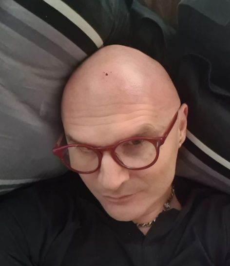 Mili s povredom glave