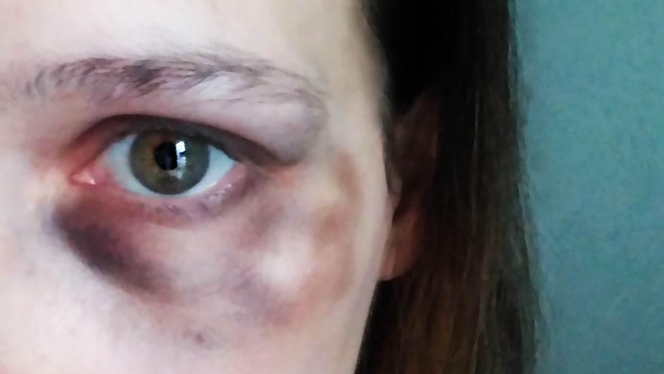 Svaka treća žena u Srbiji trpi nasilje (ANKETA)