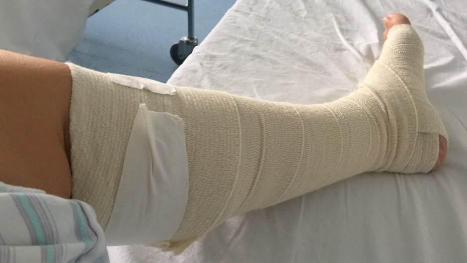 povreda, povređena noga, noga, bolnica, zavoj, noga u zavoju, zavijena noga