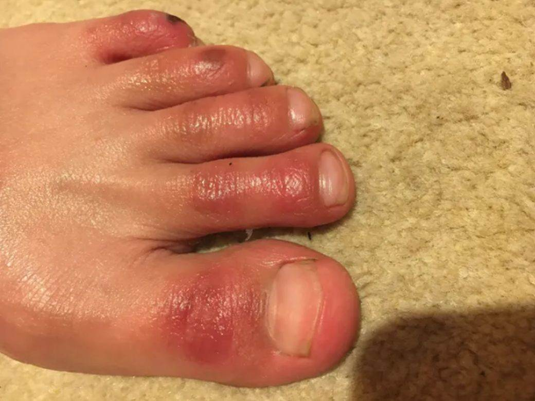 kovid prsti