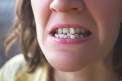 krivi zubi