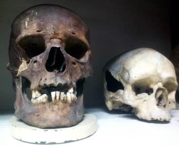 Institutu za anatomiju Medicinskog fakulteta, medicinski fakultet, anatomija, lobanja, lobanje, kostur