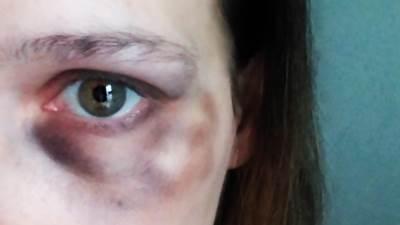 nasilje nad ženama, modrice, masnice
